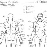 Laquan McDonald autopsy